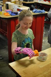 shea e la sua nuova mano stampata in 3d