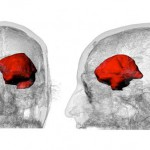 Steven Keating studente mit tumore cervello stampa 3d 05