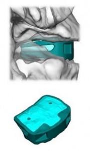 EIT impianto fusione spinale in titanio stampato in 3d 02