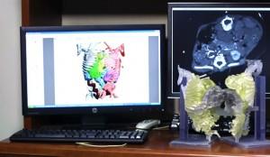 radiologia e stampa 3d